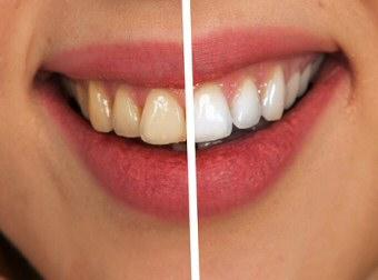 blanqueamiento dental el atabal tetinos malaga2