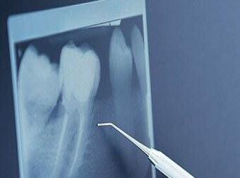 cirujia maxilofacial sin dolor clinica dental atabal malaga