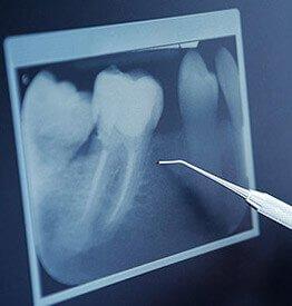 periodoncia gingivitis clinica dental atabal malaga sin dolor
